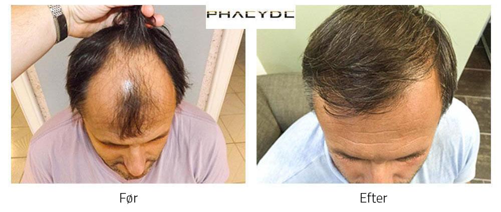 hår transplant
