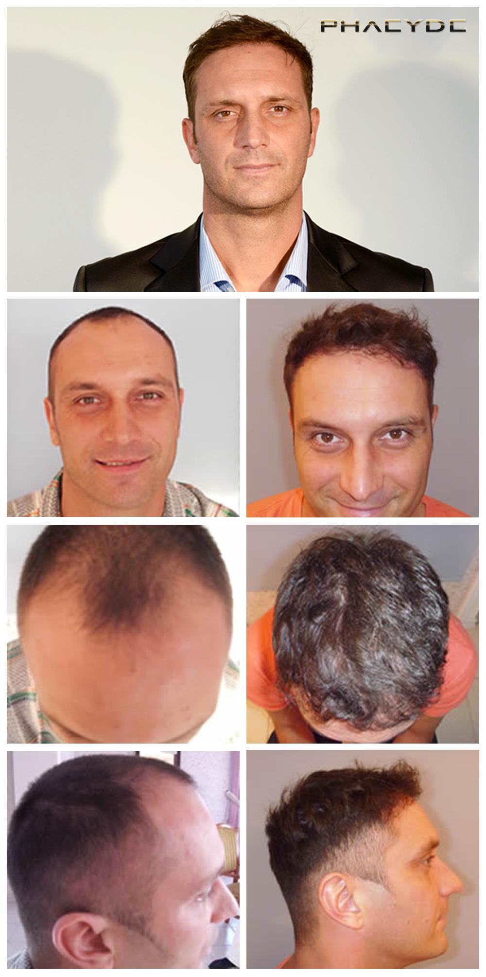 hårtransplantation før efter billeder