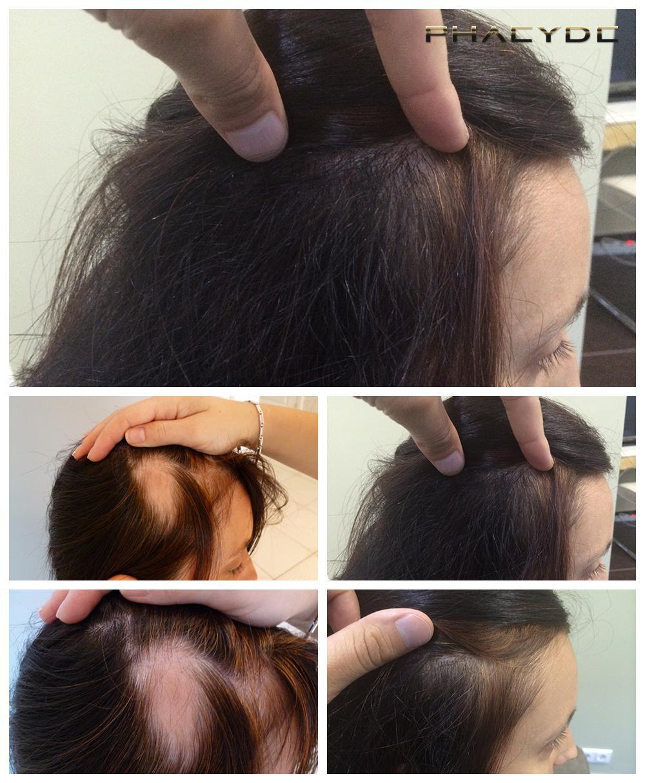 hår implantation pris