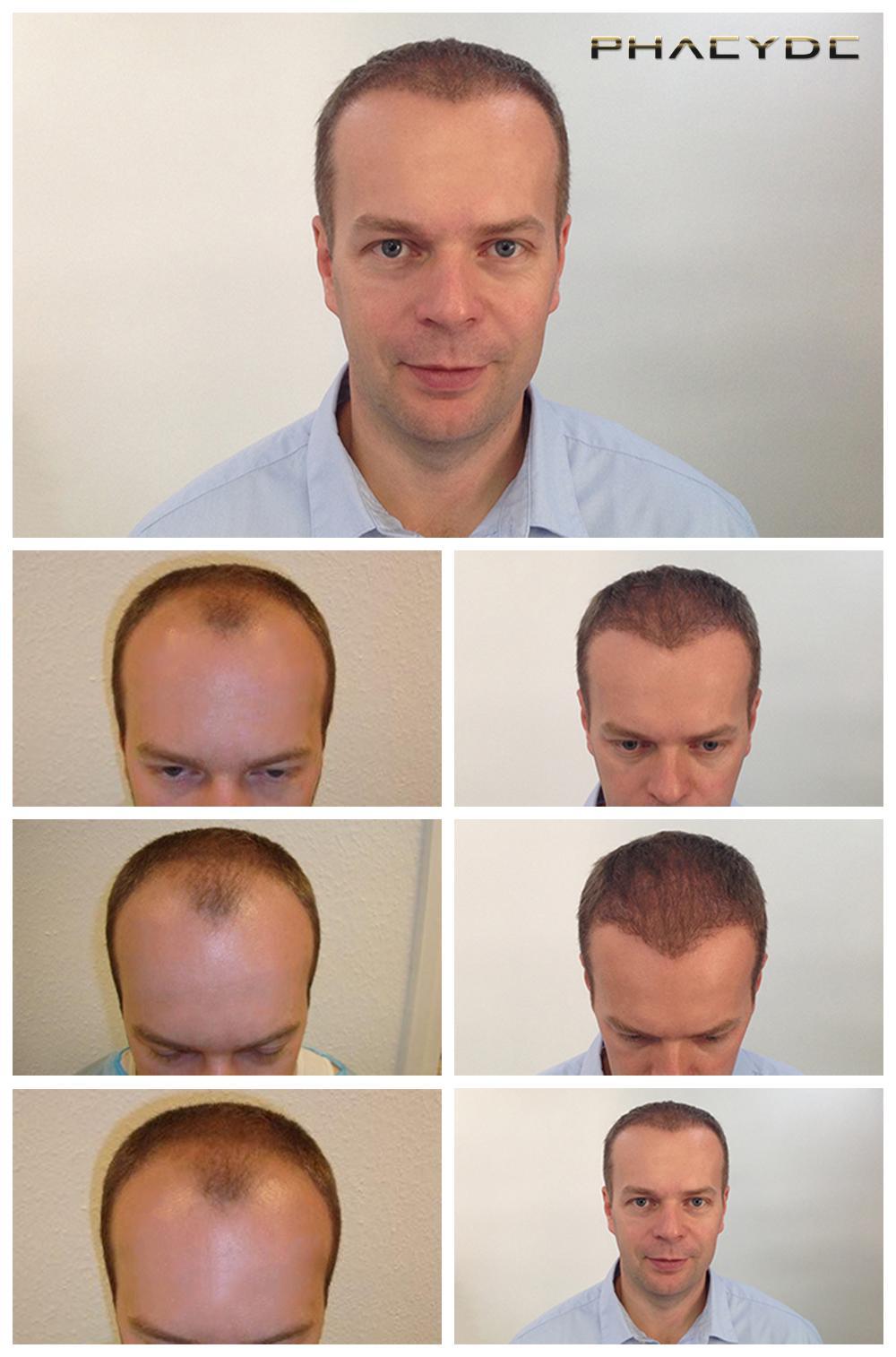 Fue hårtransplantation